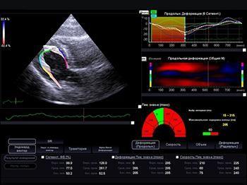 Оценка деформации миокарда Strain