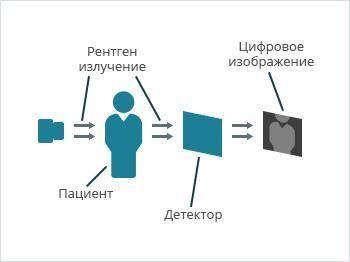 Цифровая рентгеноскопия