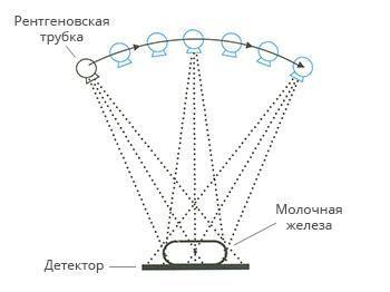 Томосинтез