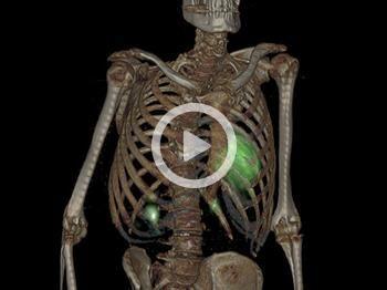 Рентгеноскопия в режиме реального времени