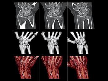 Молниеносное сканирование всего органа за один оборот гентри
