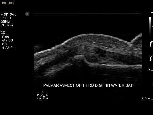 Смотреть видео узи эндовагинальным датчиком