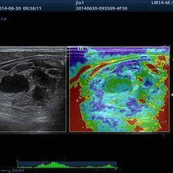 https://medeqstars.ru/uploads/2017/11/thyroid-tumor-with-elastography-250x250.jpg