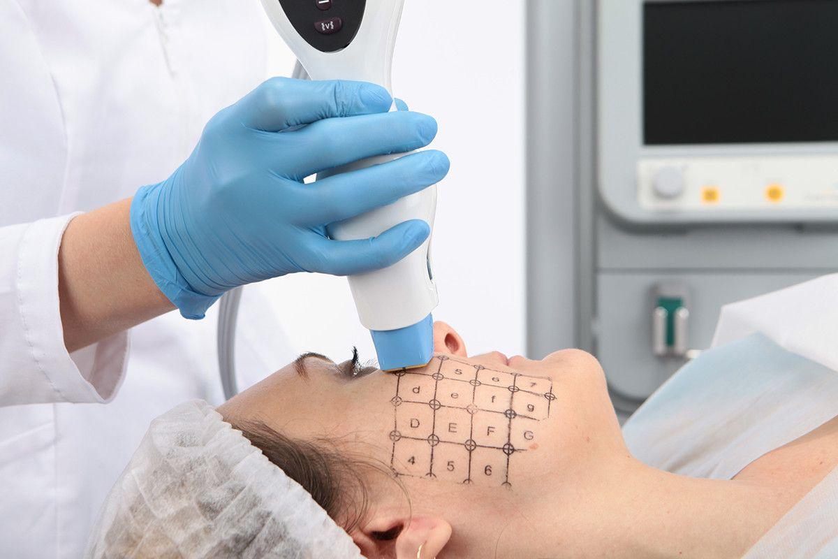 RF-лифтинг кожи лица на аппарате Thermage CPT