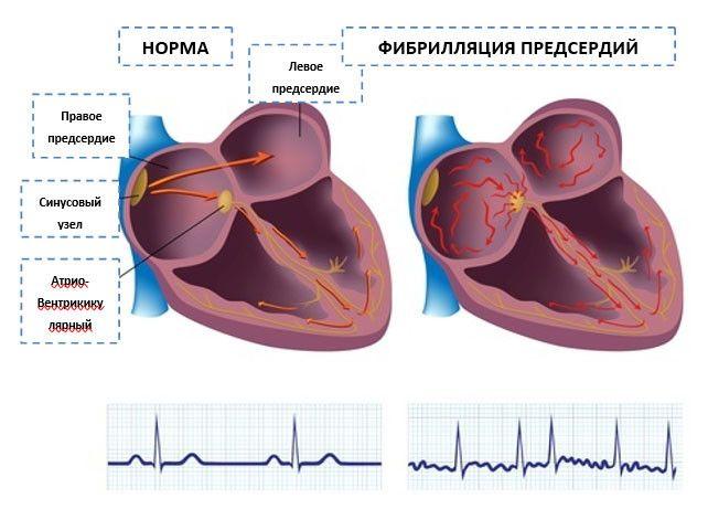 Схема распространения нервных импульсов в норме и при фибрилляции сердца